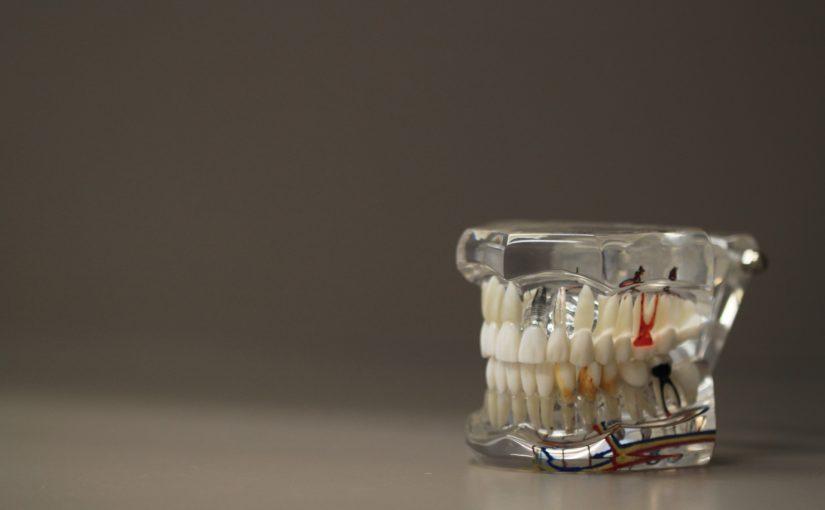 Zła sposób odżywiania się to większe niedostatki w zębach natomiast także ich brak